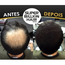 Super Billion Hair Fibers 25gr Preto - Disfarce Para Calvice